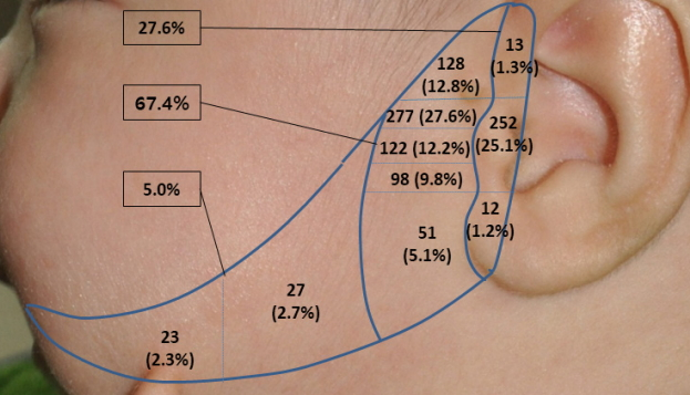 Accessory auricle: Classification according to location