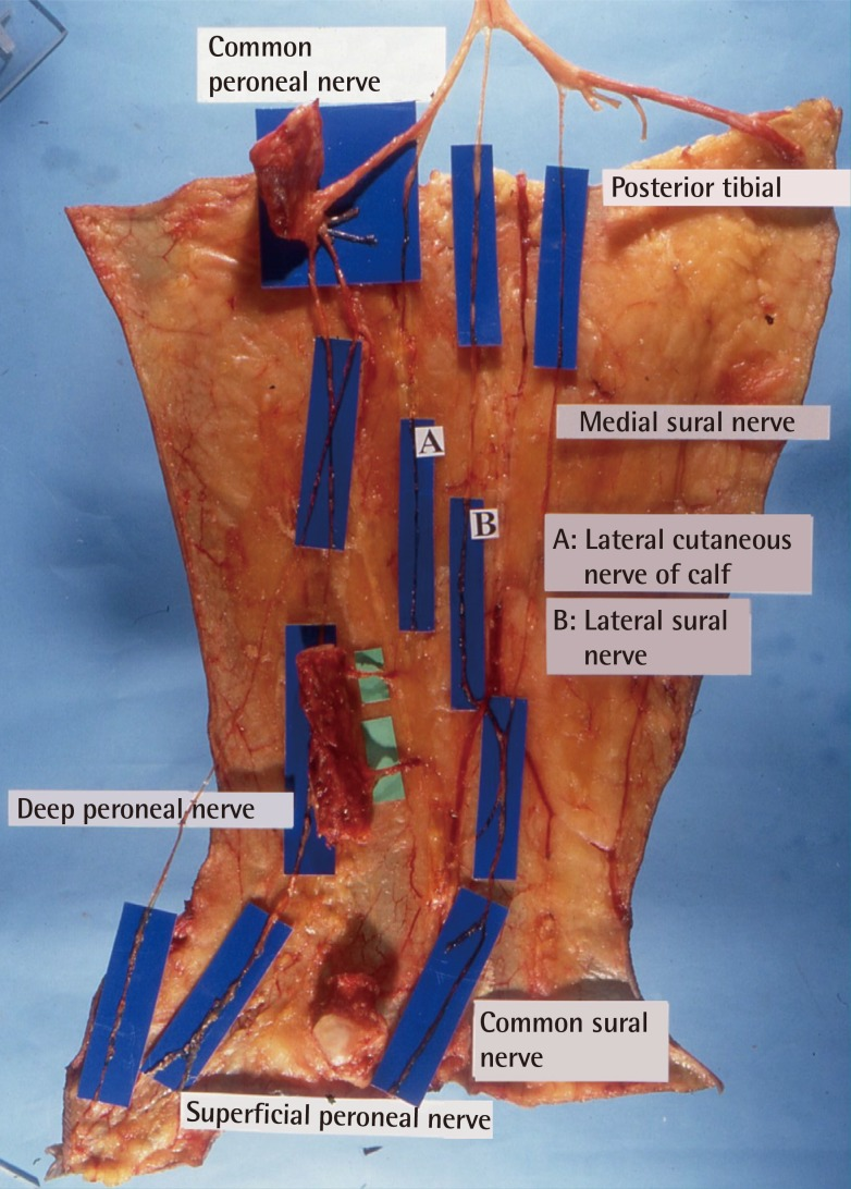 Distally Based Sural Artery Adipofascial Flap based on a Single ...