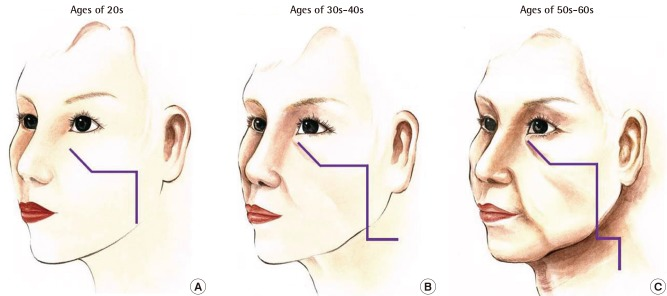 Total Facelift: Forehead Lift, Midface Lift, and Neck Lift