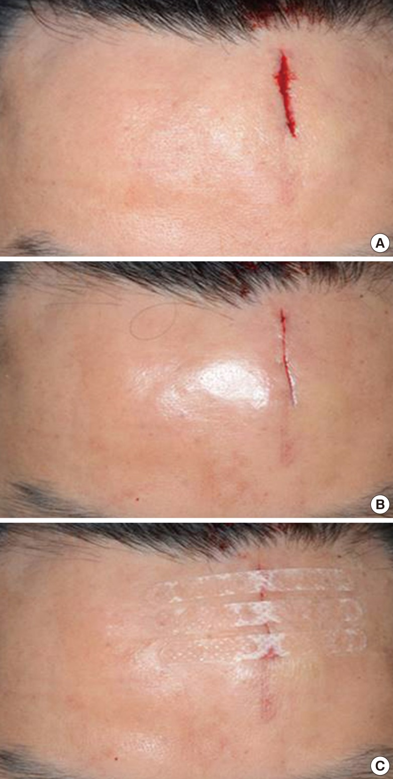 The Usefulness Of Leukosan Skinlink For Simple Facial Laceration