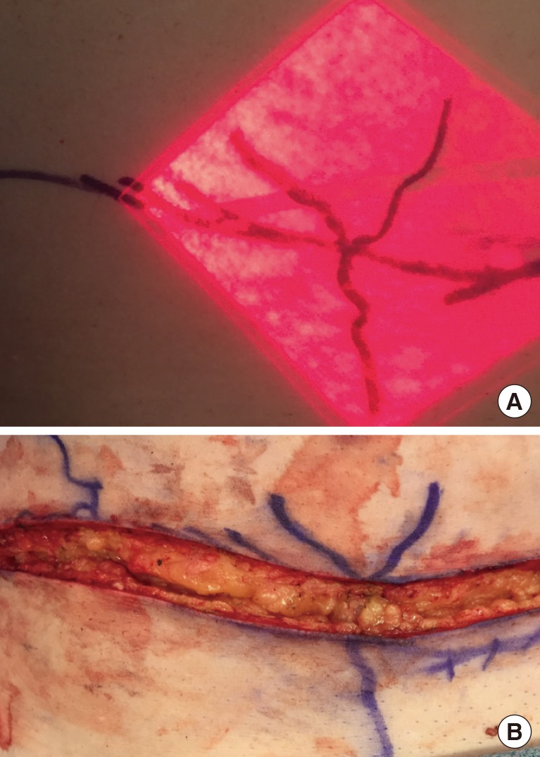non-invasive imaging of preoperative mapping of superficial veins, Cephalic Vein