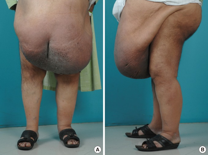 A Rare Case of Massive Localized Lymphedema in a Morbidly