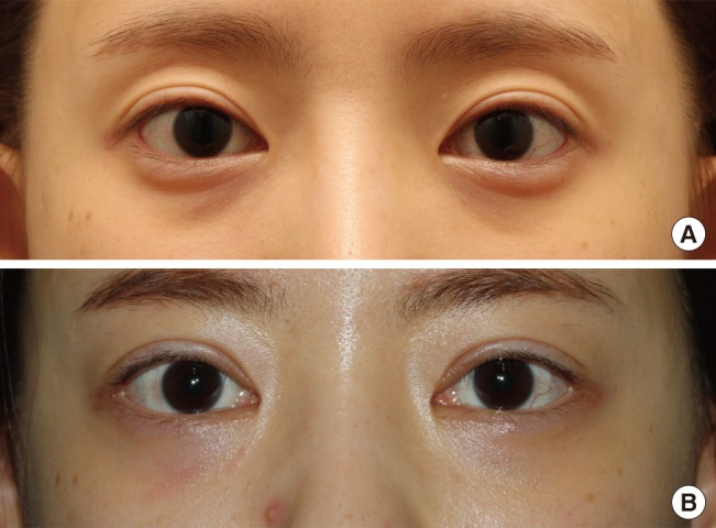 Cosmetic Lateral Canthoplasty Preserving The Lateral Canthal Angle