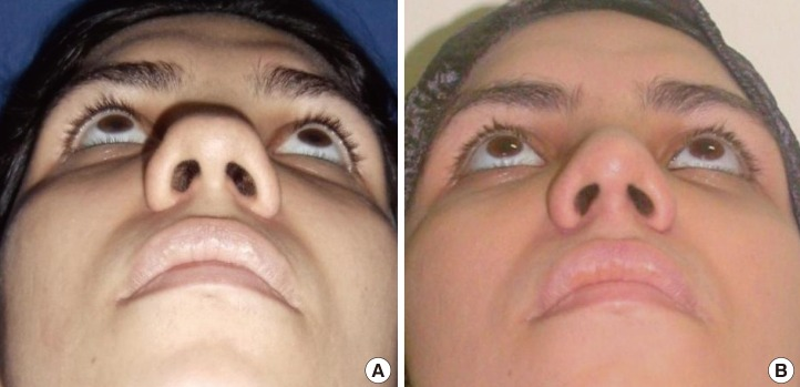 A Refined Technique for Management of Nasal Flaring: The Quest for