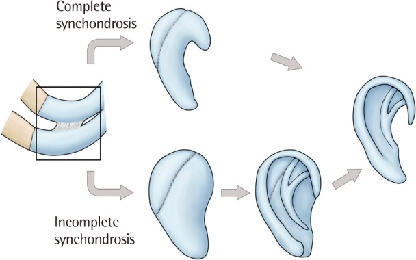 Archives Of Plastic Surgery A synchondrosis (or primary cartilaginous joint) is a type of cartilaginous joint where hyaline cartilage completely joins together two bones.1 synchondroses are different than symphyses. archives of plastic surgery