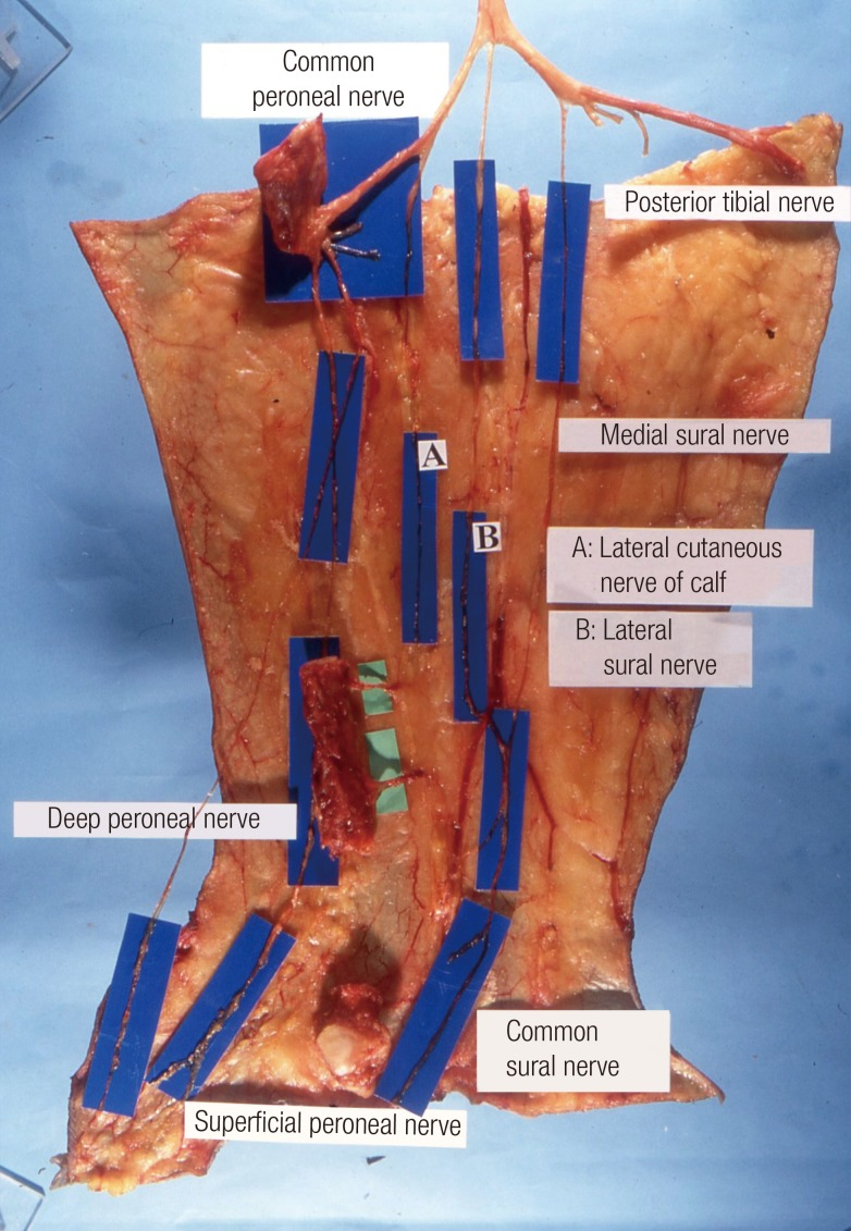 Stepwise Training For Reconstructive Microsurgery The border=