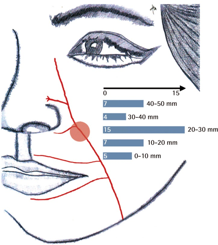 Lateral Nasal Artery Perforator Flaps: Anatomic Study and ...  Lateral Nasal A...